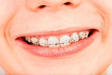 orthodontic: Smile with braces, boy ... Stock Photo