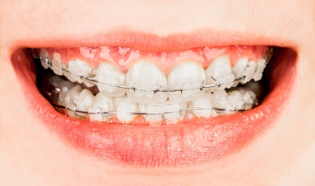 orthodontic: Teeth with braces, boy ...