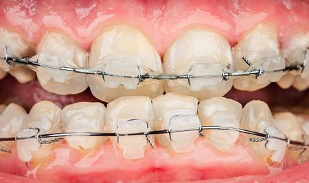 overbite: Photo braces closeup .