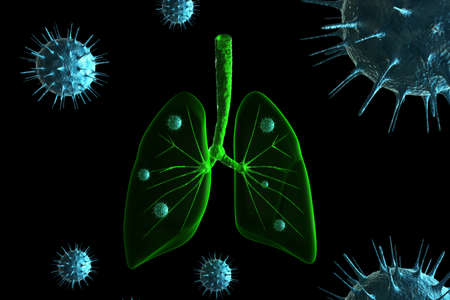 cold virus: Virus infection in lungs