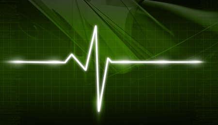 ECG Electrocardiogram Stock Photo - 10952385