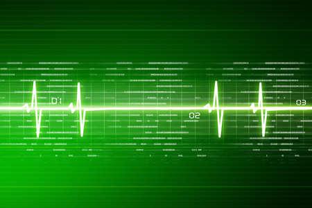electrocardiograma: ECG de fondo