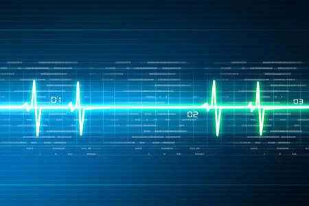 ritme: ECG achtergrond