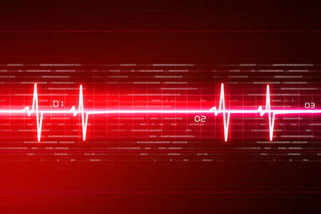 ECG background Stock Photo - 10952388