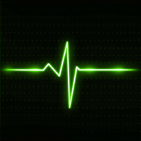 electrocardiogram: Electrocardiogram Stock Photo