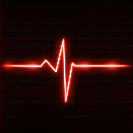 amplitude: Electrocardiogram Stock Photo