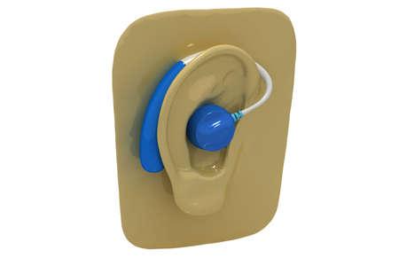 Hearing aid on ear photo