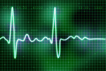 pulse trace: heart beats  Stock Photo
