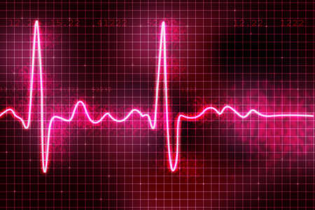 heart ecg trace: heart beats  Stock Photo