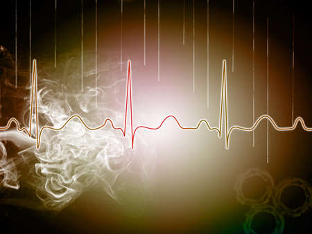 heart beat picture on a colour background Stock Photo - 15097597
