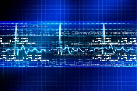 Electrocardiogram Stock Photo - 15358009