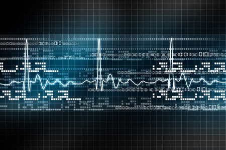 oscillate: Electrocardiogram