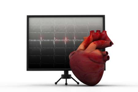 oscillate: Human heart with ECG heart beat monitor Stock Photo