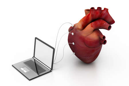 computer connected to a human heart Stock Photo - 18309548