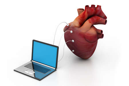 computer connected to a human heart Stock Photo - 18309439