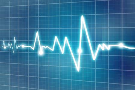 cardiograph: heart beats  Stock Photo