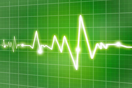 heart ecg trace: heart beats  Stock Photo