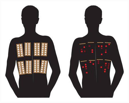 Allergie-Patch-Hauttests Vektor-Illustration auf weißem Hintergrund.