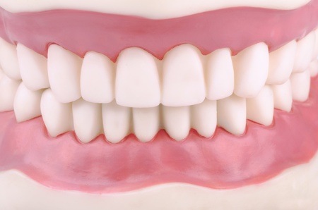 gums: Dental demonstration model of teeth Stock Photo