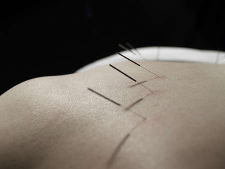 The Eastern or Asian acupuncture medical treatment said to prevent or treat a variety of medical ailments, including pain. Stock Photo - 876966