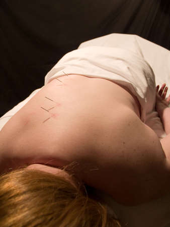 The Eastern or Asian acupuncture medical treatment said to prevent or treat a variety of medical ailments, including pain. Stock Photo - 943427