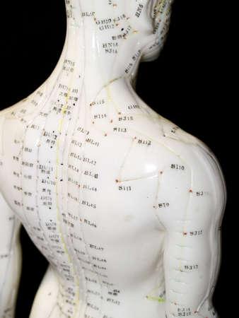 acupuntura china: El Asia oriental o la acupuntura tratamiento m�dico dice para prevenir o tratar una variedad de dolencias m�dicas, incluido el dolor.