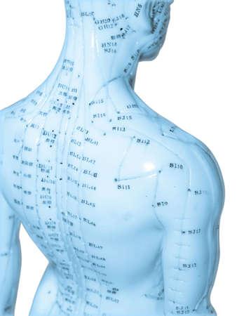 acupuntura china: El Asia oriental o la acupuntura tratamiento m�dico dice para prevenir o tratar una variedad de dolencias m�dicas, incluyendo dolor. Foto de archivo