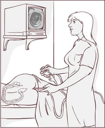 Vector Illustration eines Ärzte, die Koloskopie durchführen
