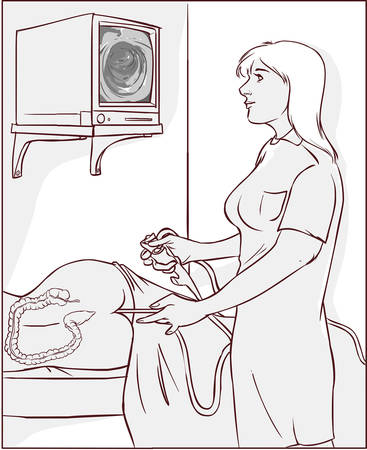 colonoscopy: Vector illustration of a doctors who perform colonoscopy