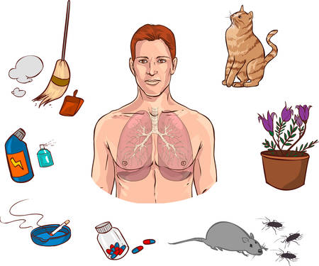 allergies: Vector illustration of a  medical Causes of allergies Illustration