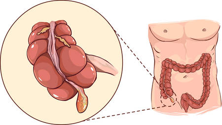 descending colon: Vector illustration of a with detail of an appendicitis Illustration