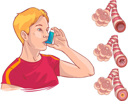 mucosa: Vector illustration of a  medical anatomy of asthma