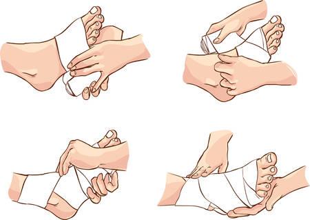 Vector illustratie van een medische voet bandage techniek