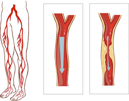 atherosclerosis: Vector illustration of aVascular System Legs. Atherosclerosis in artery