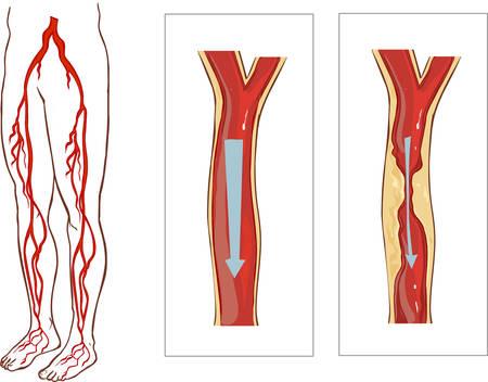 Vector illustration of Legs système avasculaire. Atherosclerosis dans l'artère Vecteurs