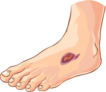 Vector illustration of a medical Diabetic foot 일러스트