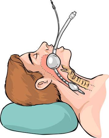 techniek: Vector illustratie van een techniek van de eileiders intubatie Stock Illustratie