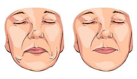 double chin: Vector illustration  medical of a smile lines Illustration