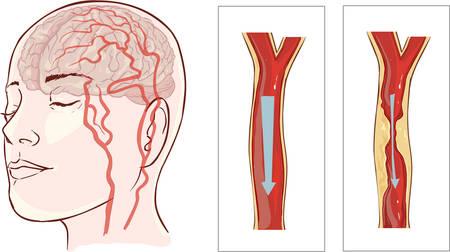cerebro humano: ilustraci�n vectorial ofbrain accidente cerebrovascular. El infarto cerebral Vectores