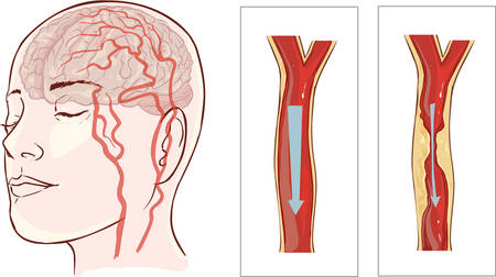Vector illustration ofbrain stroke. Cerebral infarction