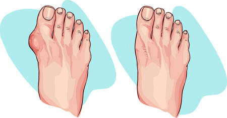 bunion: Vector illustration of bunion before and after operation