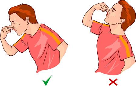 white background vector illustration of a nosebleed Vettoriali