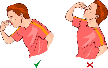 white background vector illustration of a nosebleed