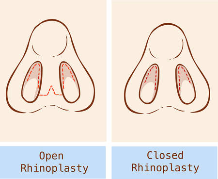 illustration technique: Vector illustration of a anatomy Rhinoplasty technique