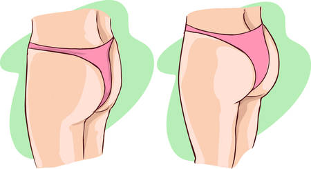 green background Vector illustration of a buttocks implants