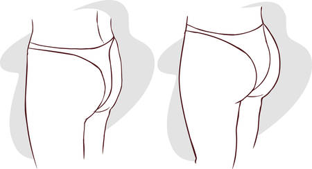 buttocks: green background Vector illustration of a buttocks implants