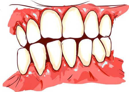 disease: white backround vector illustration of a gum disease Illustration