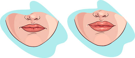 Blue backround Vector illustration of a lip filler
