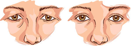 eyelid: white background Vector illustration of a eyelid lift