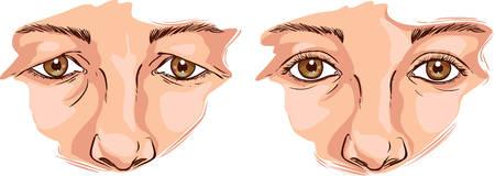 eye sockets: white background Vector illustration of a eyelid lift